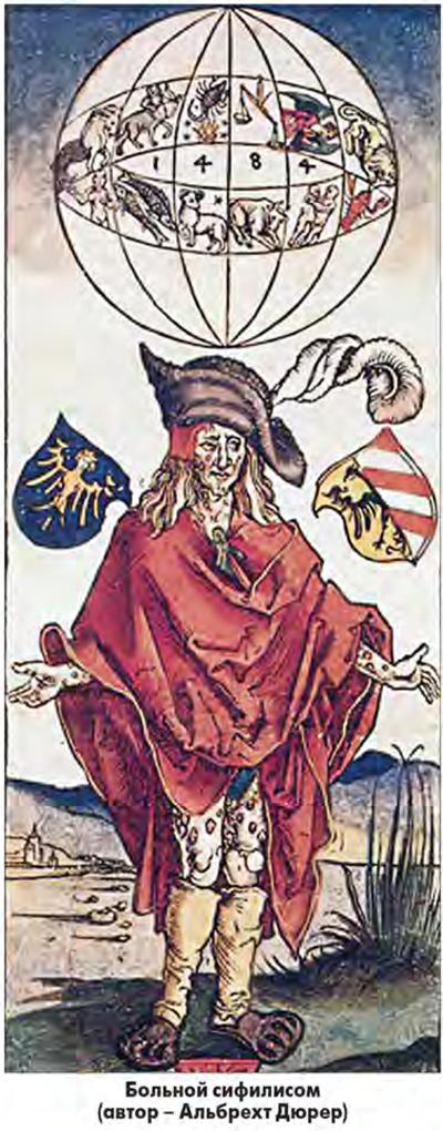 Картинки по запросу происхождение Сифилиса