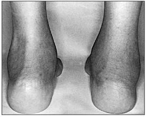 Рис. 2. Ахіллобурсит справа у HLA-B27-позитивної дитини з реактивним артритом [15]