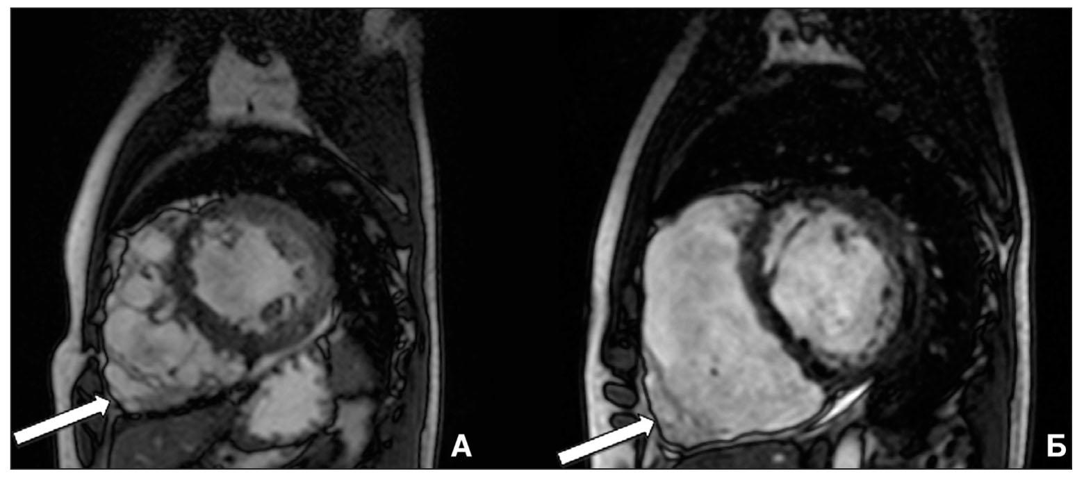Рис. 2. МРТ-сердца с внутривенным контрастированием пациента 18 лет с АДПЖ  На МРТ-сагиттальных изображениях отмечаются признаки наличия локальных аневризм в области передней стенки и верхушки ПЖ (А), дилатация и истончение стенки ПЖ с содержанием жировой ткани (Б) (указано стрелками).