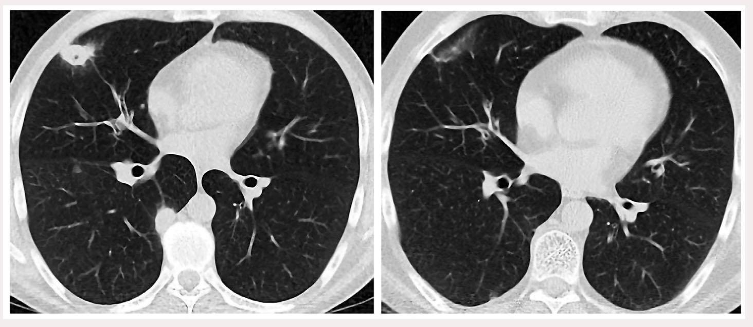 Рис. 2. КТ ОГП больного Б. до (слева) и через 6 мес после (справа) терапии метилпреднизолоном: отчетливая положительная динамика – рассасывание инфильтрата с небольшой полостью деструкции в верхней доле правого легкого