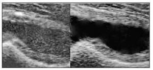 Рис. 3. УЗ-картина гемартрозу (зліва) порівняно з ексудативним транзиторним синовітом (справа) кульшового суглоба (особистий архів)