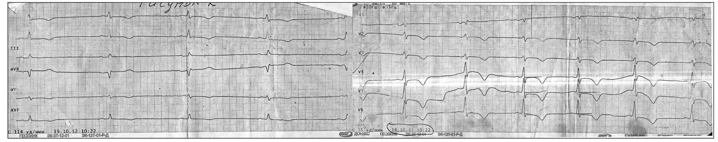 Рис. 3. ЭКГ больного П., 2013 г. Синусовый ритм. Отрицательные зубцы Т до 2 мм в отведениях I, II, aVF и до 6 мм в отведениях V2-V6.  Укорочение интервала PQ до 100 мс