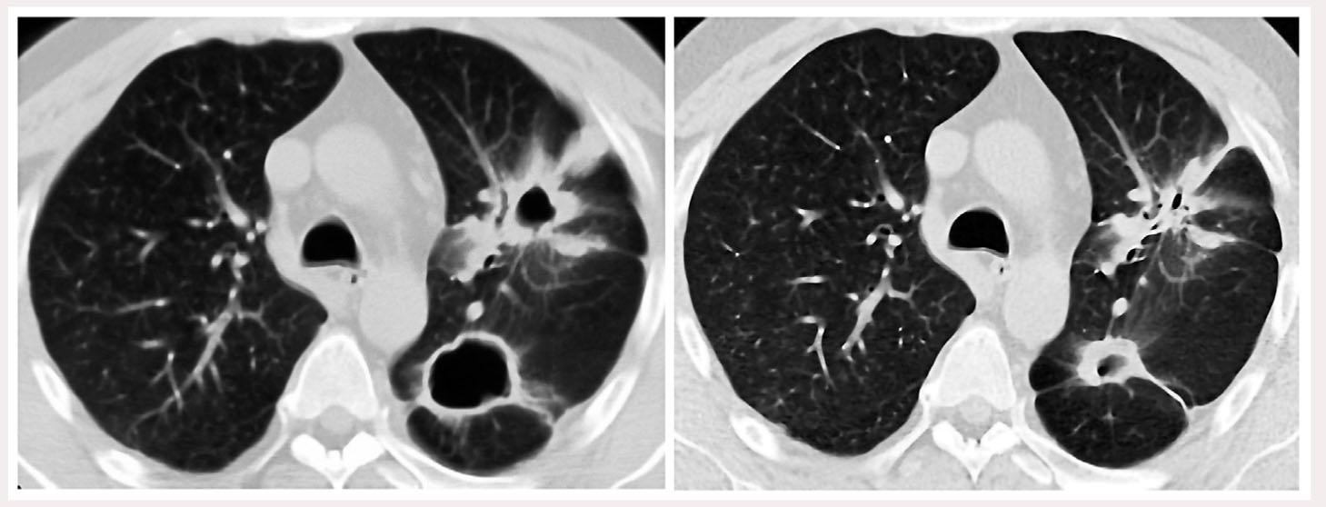 Рис. 1. КТ ОГП больного С. до (слева) и через 3 мес после (справа) проведения пульс-терапии метилпреднизолоном: отчетливая положительная динамика – рубцевание инфильтрата с полостью деструкции в верхней доле левого легкого, уменьшение в размерах полости деструкции другого инфильтрата