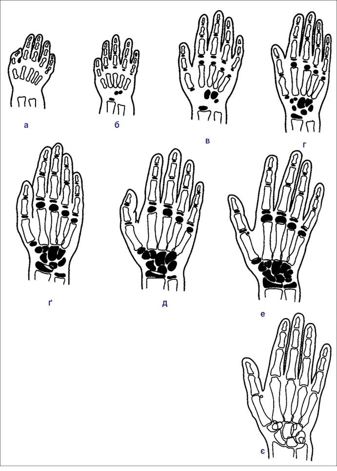 Рис. 4. Кістковий вік. Схема розвитку скелета кисті віднародження до статевої зрілості