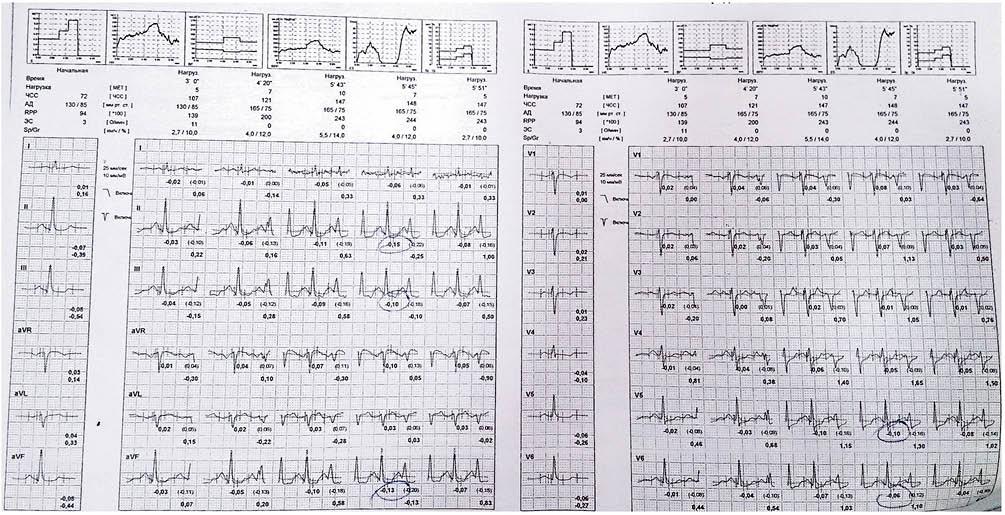 Рисунок 4. Нагрузочная проба с депрессией сегмента ST до 1,5 мм  в отведениях II, III, AVF, V5-V6