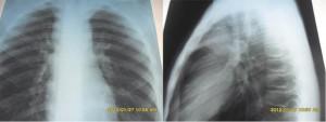 Рисунок 3. Данные рентгенографии: расширение тени средостения за счет конгломерата увеличенных лимфоузлов, поражение переднего средостения