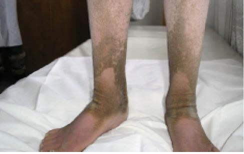 Рис. 2. Клиническая картина дефицита стероидной сульфатазы (Х-сцепленный ихтиоз)