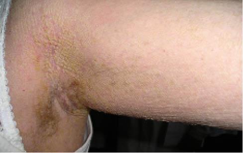 Рис. 3. Клинические проявления буллезной врожденной ихтиозиформной эритродермии