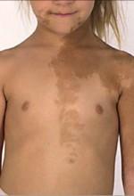 Рис. 3. Синдром Мак-К'юна – Олбрайта– Брайцева: типова пігментація на шкірі