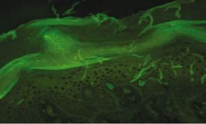 Рисунок 6. Гомогенное накопление иммуноглобулинов IgG, IgM и C3-компонента комплемента в эпидермальной пограничной зоне, верхней и средней дерме  (прямая иммунофлюоресценция)