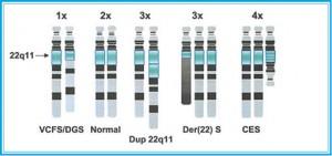 Рисунок 2. Схематическое изображение перестроек, затрагивающих район 22q11. Над парами гомологичных хромосом 22указано число копий q11, под – синдромы, обусловленные конкретной реорганизацией 22q11.2 (E. Heather et al., 2002)