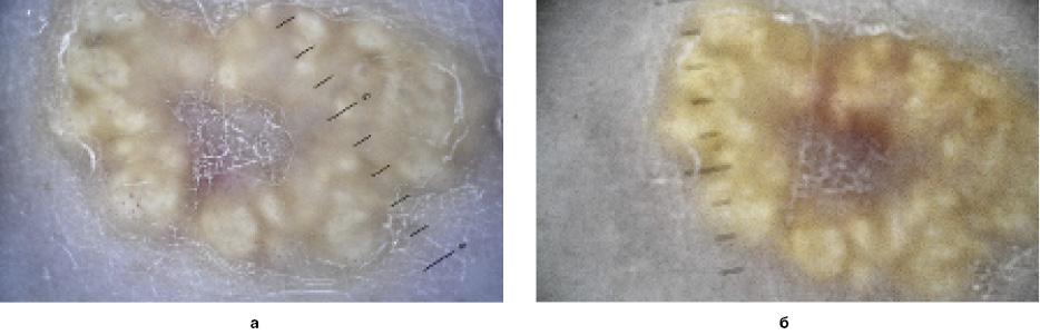 Рис. 2. Пациент С. Дерматоскопия: а– иммерсионная дерматоскопия; б– дерматоскопия скросс-поляризацией