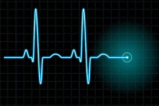 Влияние увеличенной ЧСС на клинические исходы  у пациентов с СН при сохраненной и сниженной  фракции выброса левого желудочка: доклад из исследования CHART-2