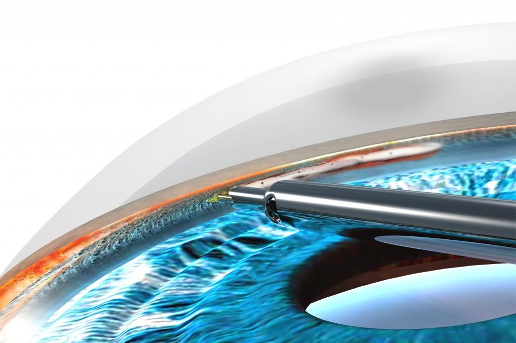 Эффективность имплантации трабекулярных стентов во время факоэмульсификации у пациентов с глаукомой и катарактой
