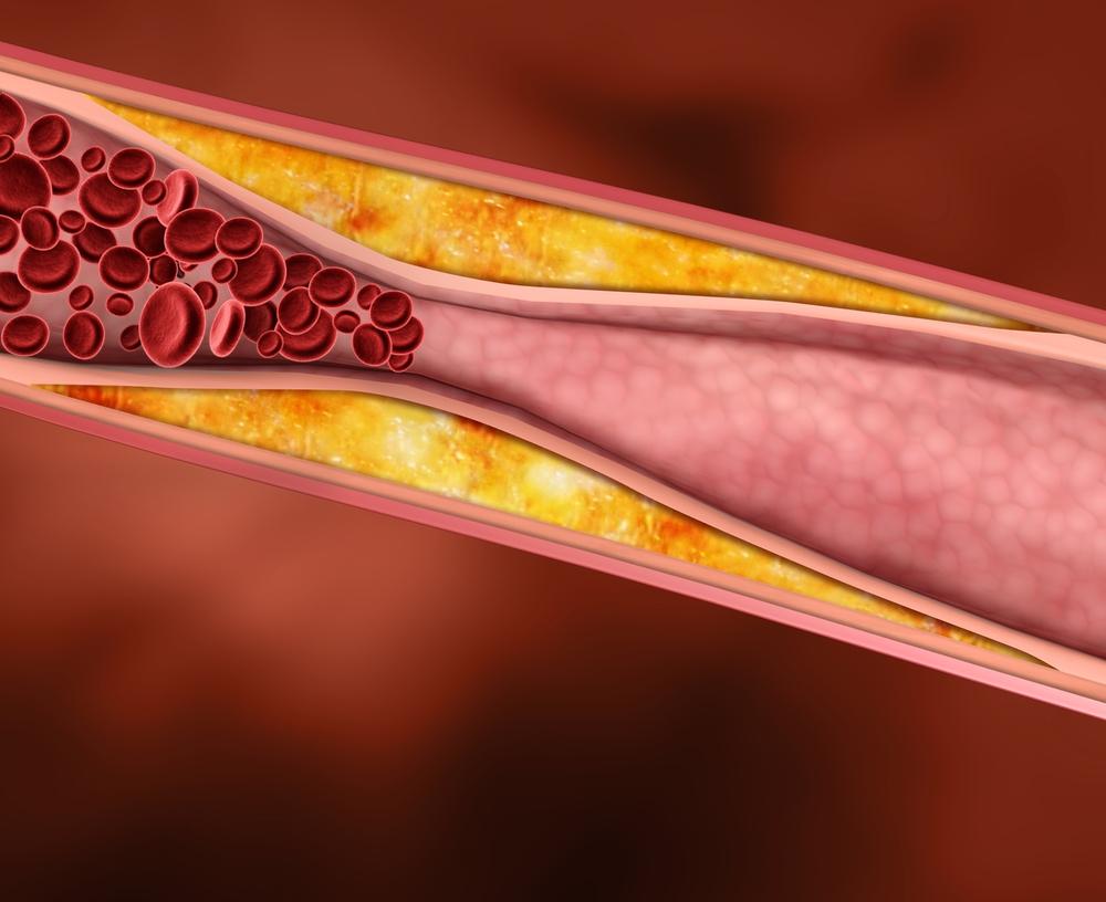 Эффективность и безопасность применения эволокумаба для снижения уровня липидов с целью предотвращения сердечно-сосудистых осложнений