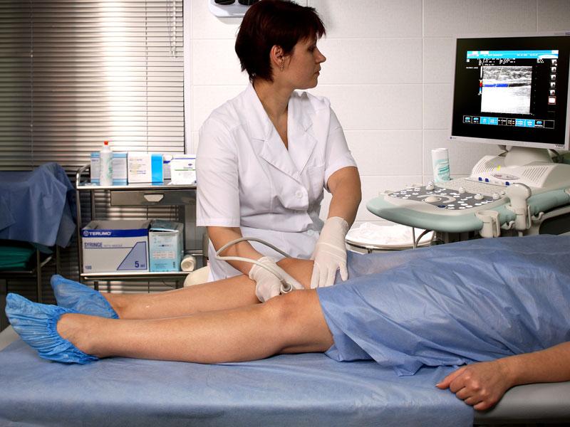 Лечение венозных язв с применением экстракта плодов конского каштана