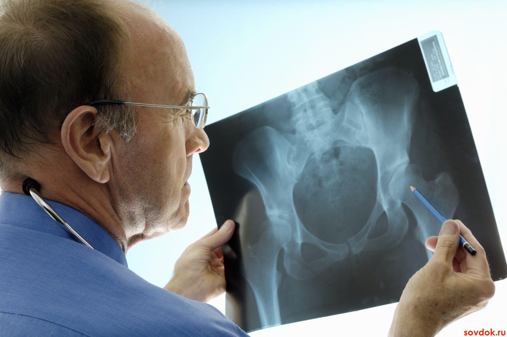 Влияние голимумаба  и памидроната на клиническую эффективность и воспаление при аксиальном спондилоартрите