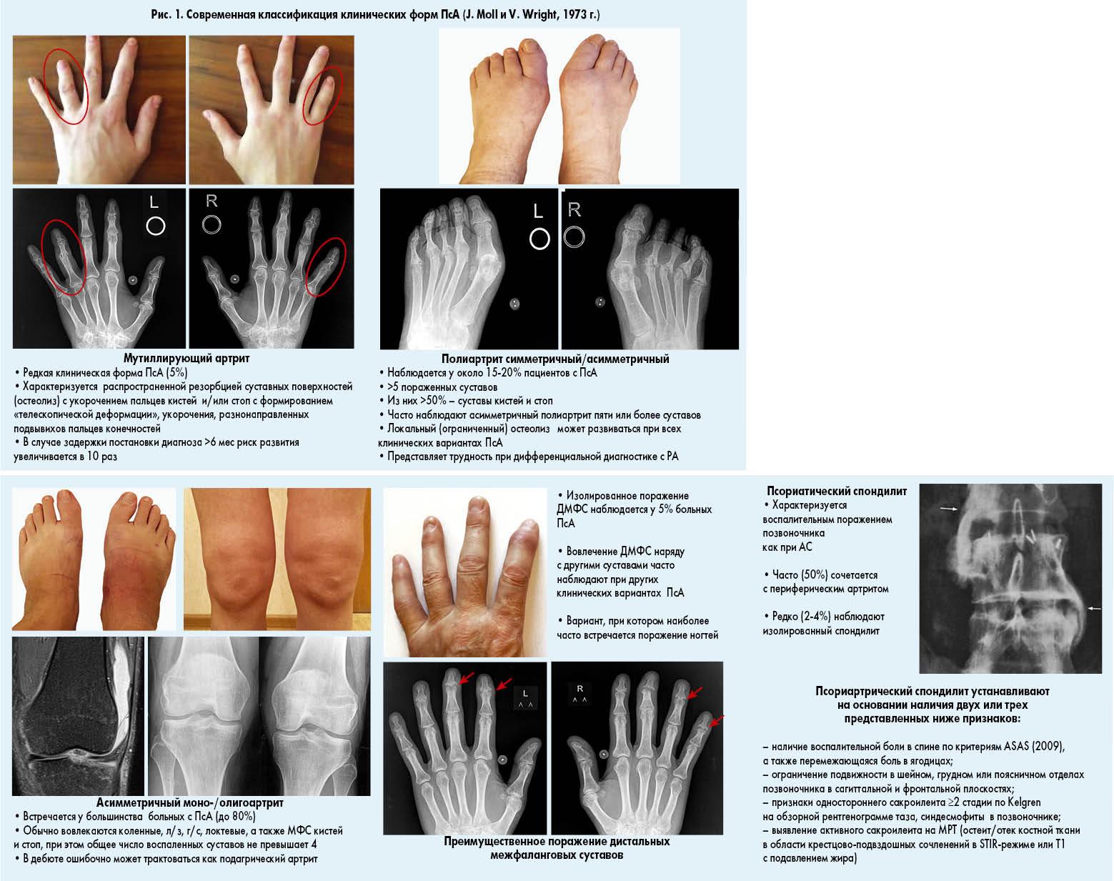 Псориатический артрит прогноз 109