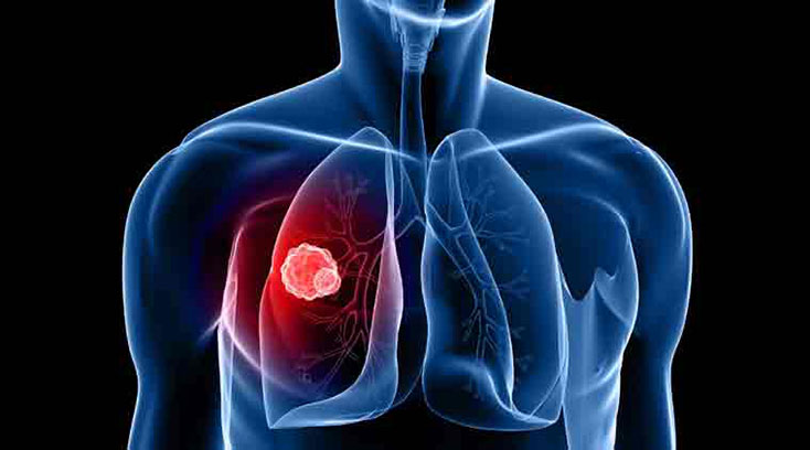 Сравнительное исследование эффективности и безопасности теофиллина и доксофиллина у пациентов с БА и ХОЗЛ
