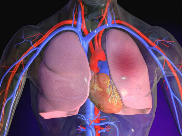 Особенности диагностики и лечения ТЭЛА у пожилых пациентов