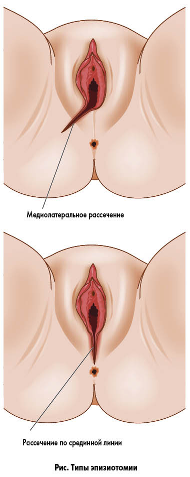 Эпизиотомия
