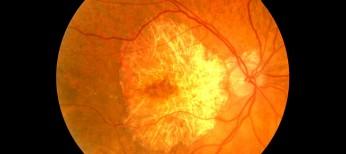 Терапия неэкссудативной формы возрастной макулодистрофии высокими дозами статинов
