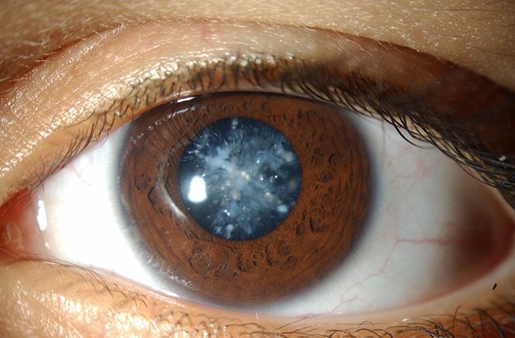 У пациентов снеоднократной имплантацией ИОЛ повышен риск развития катаракты