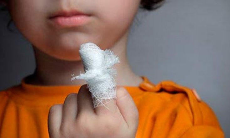 Новое исследование предполагает использование витамина D у детей с ожогами в критическом состоянии