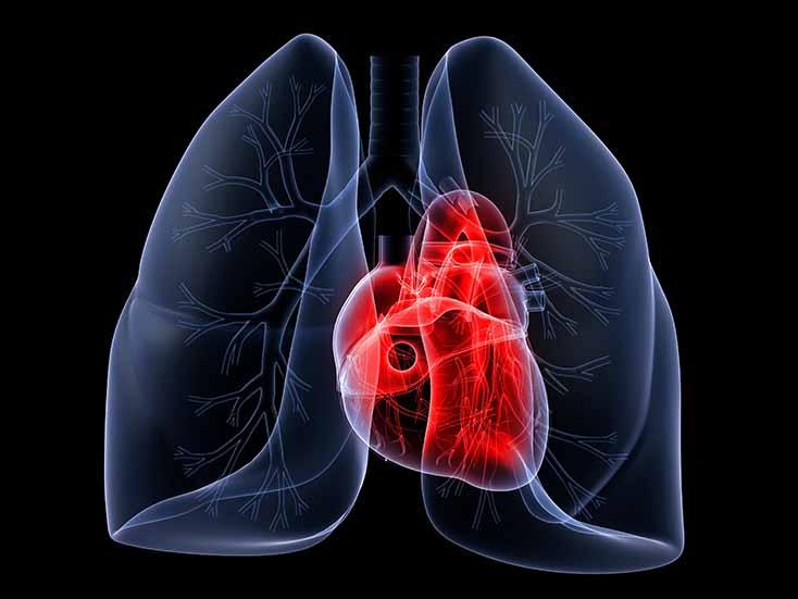 Новый препарат селексипаг для лечения легочной артериальной гипертензии