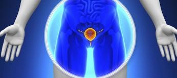 Алгоритм підготовки та проведення високотехнологічної дистанційної променевої терапії при лікуванні пацієнтів, хворих на рак передміхурової залози