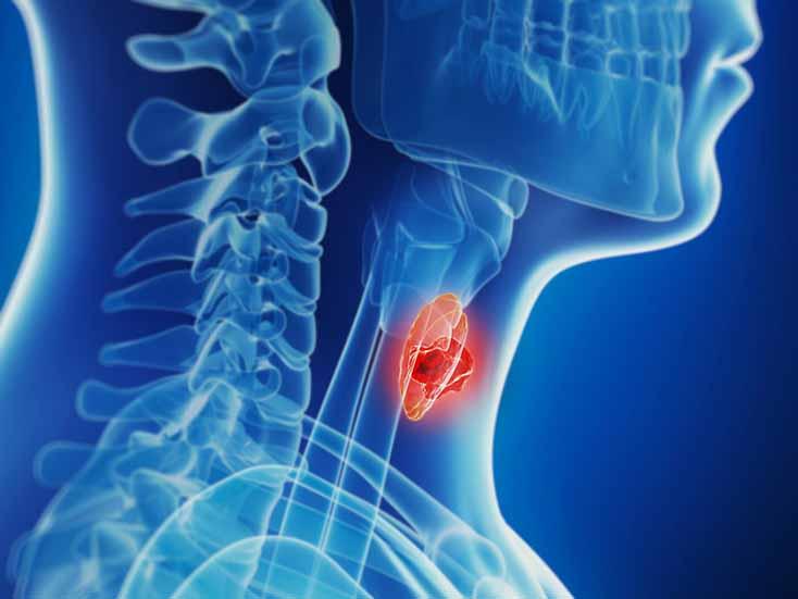Зміни у підходах до лікування вузлів та раку щитоподібної залози