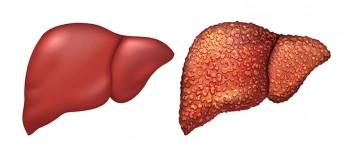 Поражение печени при воспалительных заболеваниях кишечника