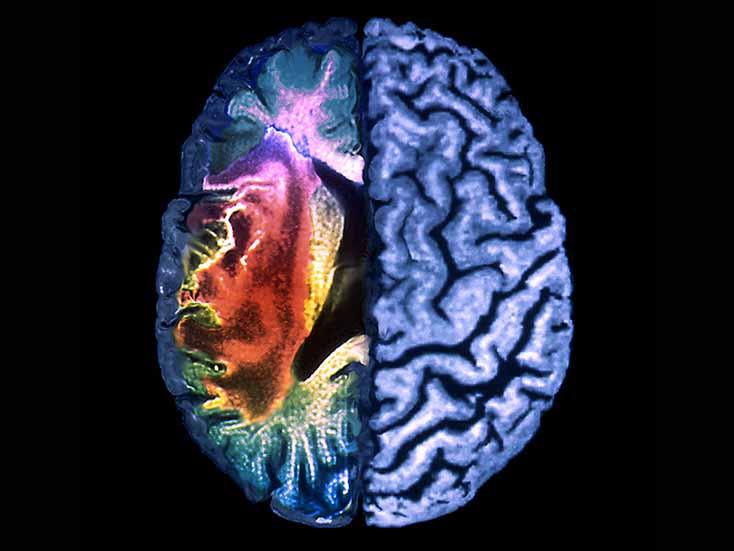 Факторы риска повторного инсульта упациентов, принимающих агрессивную медикаментозную терапию
