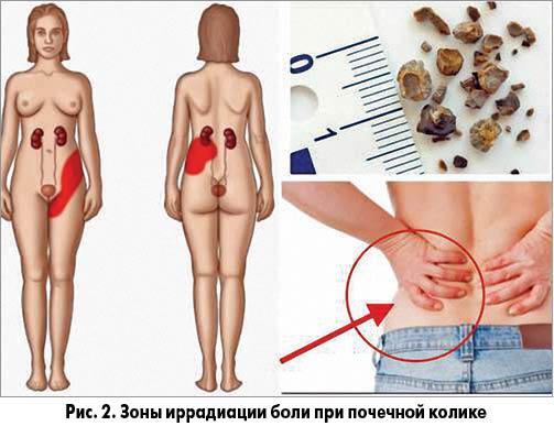Медикаментозное лечение боль в поджелудочной железе
