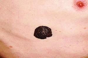 Рис. 11. Меланоцитарна себорейна гіперкератома