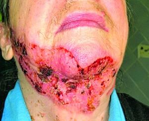 Рис. 4. Базальноклітинний рак шкіри