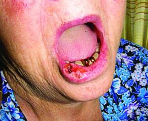 Рис. 5. Плоскоклітинний рак шкіри