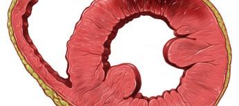 Фрагментированный комплекс QRS и его влияние на краткосрочные исходы у пациентов с острым инфарктом миокарда без подъема сегмента ST