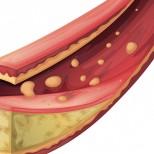 Терапия статинами, уровни холестерина исердечно-сосудистые события в популяции высокого риска