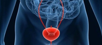 Одобрена новая таргетная терапия рака мочевого пузыря