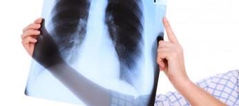 Лечение доксициклином неэффективно при ХОЗЛ