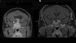 Каберголин в лечении инвазивной гигантской пролактиномы