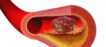 Лечение и профилактика тромбозов