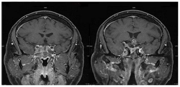Рис. 2. МРТ через 13 после лечения