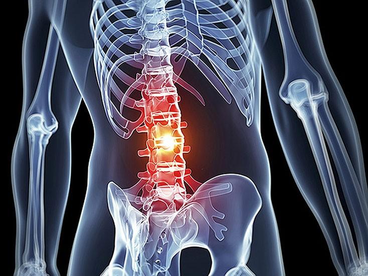 Будущее в лечении анкилозирующего спондилоартрита