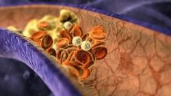Лікування і профілактика тромбозів: як не поповнити статистику кровотеч?