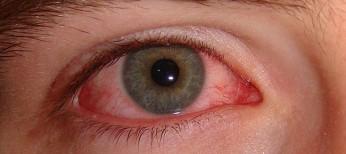В США появится рецептурный препарат для лечения синдрома сухого глаза