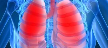 Рациональная эмпирическая антибиотикотерапия  внебольничной пневмонии: обзор современных рекомендаций