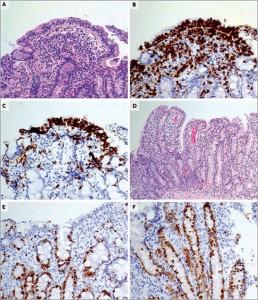 Рис. 1. Результаты первоначальной биопсии ДПК  Окрашенные гематоксилин-эозином образцы биопсии ДПК иллюстрируют повреждение поверхностного эпителия, наличие многочисленных интраэпителиальных лимфоцитов, большого количества плазматических клеток и лимфоцитов в собственной пластинке слизистой (панель А). Иммунное окрашивание тех же образцов на СD3 выявило большое количество интраэпителиальных лимфоцитов и лимфоцитов в собственной пластинке слизистой оболочки (панель В). Иммунное окрашивание на CD8 демонстрирует увеличение числа интраэпителиальных лимфоцитов (панель С). Окрашивание гематоксилин-эозином выявило легкое/умеренное сглаживание ворсинок, гиперплазию крипт, расширение пролиферативной зоны (панель D). Иммунное окрашивание на Ki-67 иллюстрирует значительную полиферацию в эпителиальных клетках крипт, которая распространяется на поверхность эпителиальных клеток, что указывает на расширение пролиферативной зоны в криптах и их гиперплазию (панель Е и F). Вместе взятые эти данные характерны для целиакии (модифицированная классификация Marsh– 3b).
