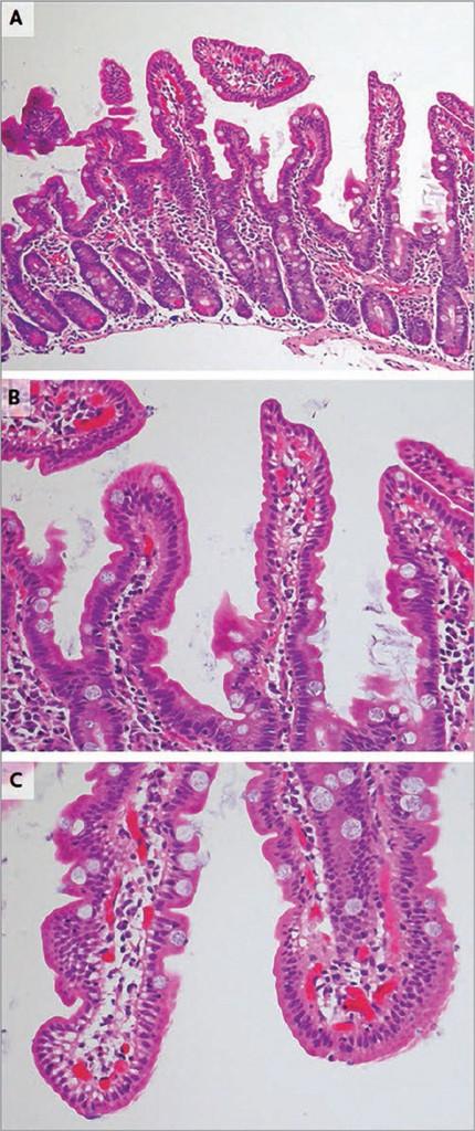 Рис. 2. Результаты повторной биопсии ДПК Повторная биопсия (панель А, В, С) иллюстрирует состояние слизистой ДПК с нормальной архитектурой ворсинок, без сглаживания последних или их атрофии. Количество интраэпителиальных лимфоцитов не увеличено, бокаловидные клетки и полярность ядер сохранены. Регрессия патологических изменений слизистой с нормализацией состояния ворсинок (по классификации Marsh – 0 стадия) свидетельствует о гистологической ремиссии. Регрессия патологических изменений слизистой с нормализацией строения ворсинок (по классификации Marsh – 0 стадия) свидетельствует о гистологической ремиссии заболевания.